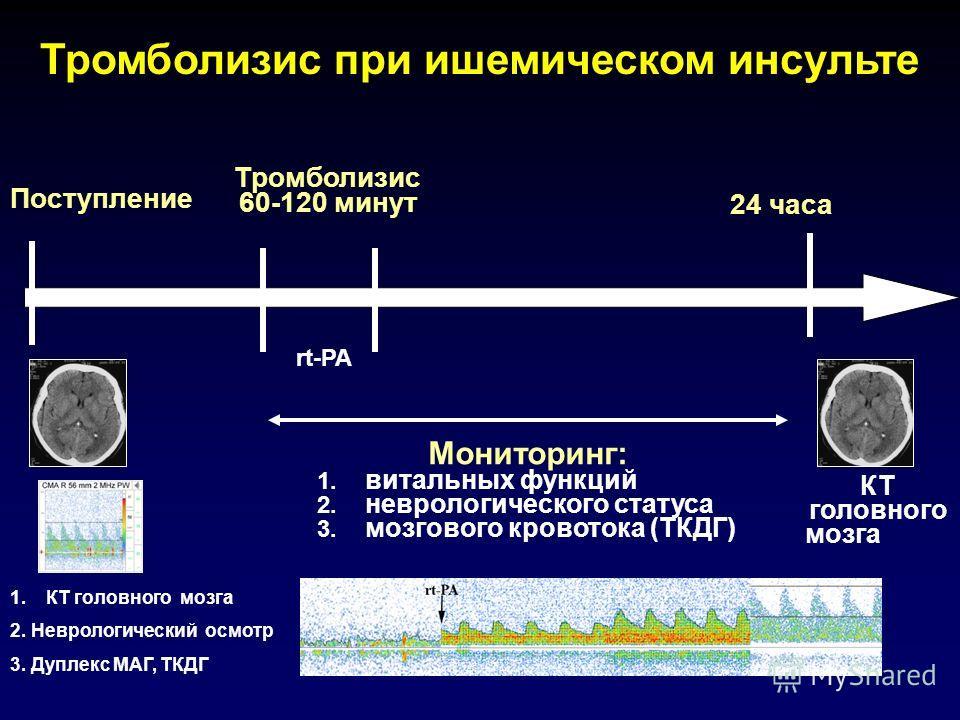 Тромболизис 60-120 минут 1.КТ головного мозга 2. Неврологический осмотр 3. Дуплекс МАГ, ТКДГ Поступление 24 часа Мониторинг: 1. витальных функций 2. неврологического статуса 3. мозгового кровотока (ТКДГ) КТ головного мозга rt-PA Тромболизис при ишеми
