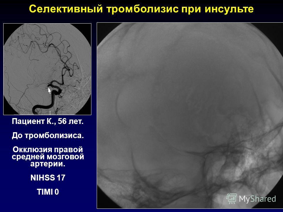 Пациент К., 56 лет. До тромболизиса. Окклюзия правой средней мозговой артерии. NIHSS 17 TIMI 0 Селективный тромболизис при инсульте