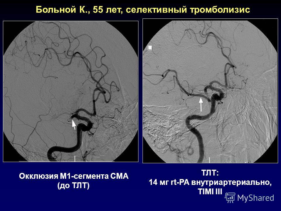 Больной К., 55 лет, селективный тромболизис Окклюзия М1-сегмента СМА (до ТЛТ) ТЛТ: 14 мг rt-PA внутриартериально, TIMI III