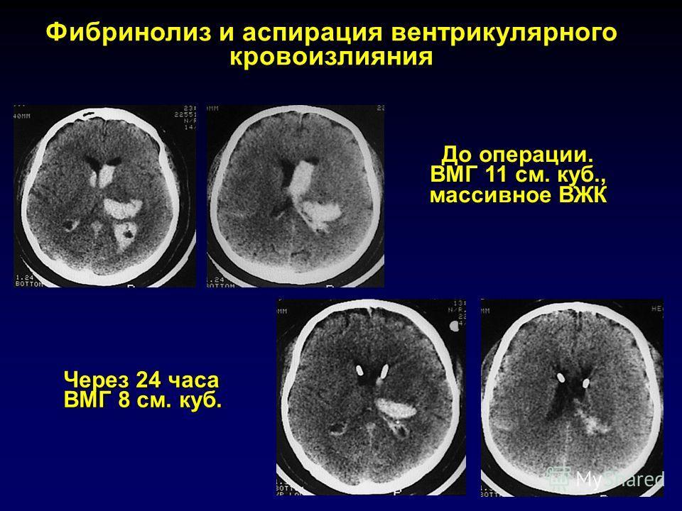 Фибринолиз и аспирация вентрикулярного кровоизлияния До операции. ВМГ 11 см. куб., массивное ВЖК Через 24 часа ВМГ 8 см. куб.
