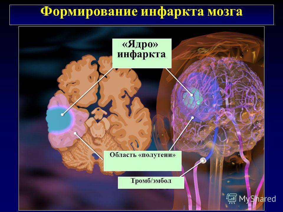 «Ядро» инфаркта Область «полутени» Тромб/эмбол Формирование инфаркта мозга
