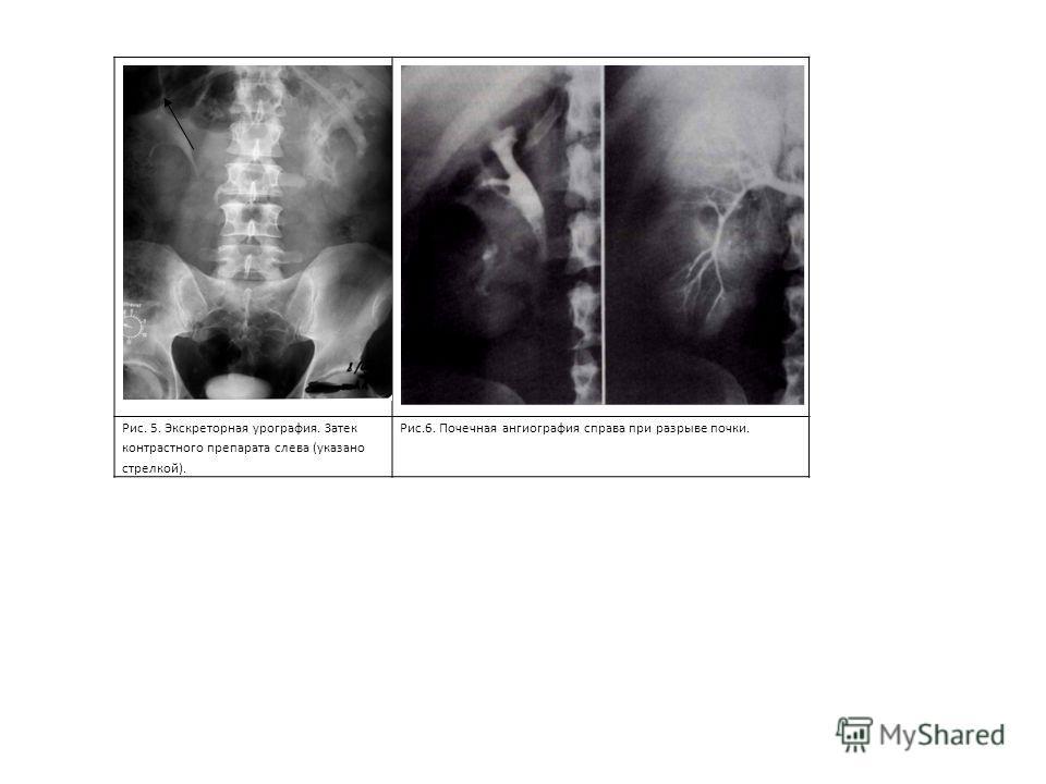 Рис. 5. Экскреторная урография. Затек контрастного препарата слева (указано стрелкой). Рис.6. Почечная ангиография справа при разрыве почки.