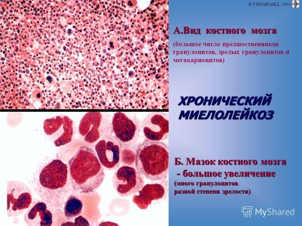 © П.Ф.Литвицкий, 2004 © ГЭОТАР-МЕД, 2004 A.Вид костного мозга (большое число предшественников гранулоцитов, зрелых гранулоцитов и мегакариоцитов) ХРОНИЧЕСКИЙМИЕЛОЛЕЙКОЗ Б. Мазок костного мозга - большое увеличение - большое увеличение (много гранулоц