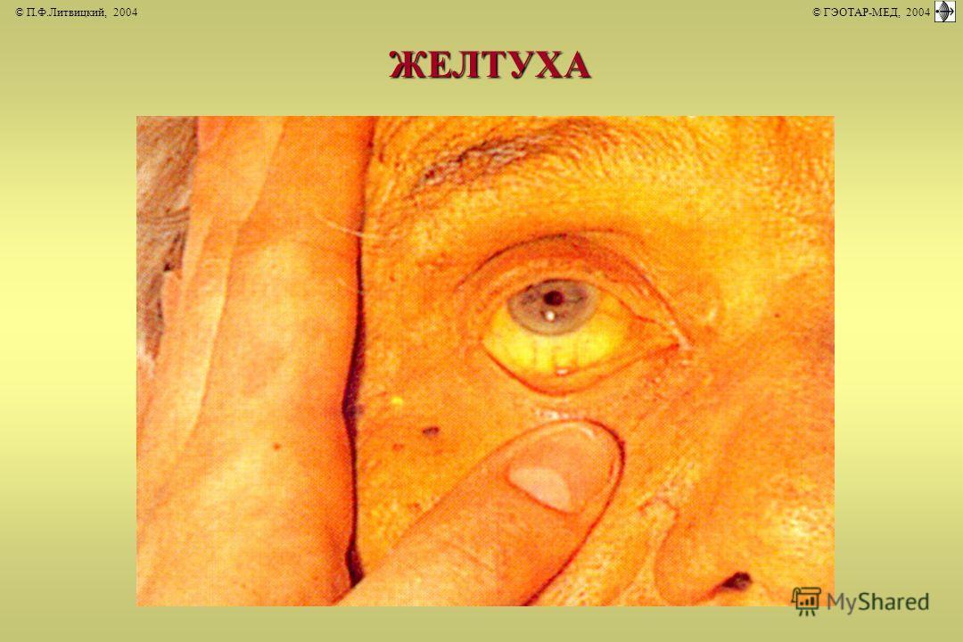 © П.Ф.Литвицкий, 2004 © ГЭОТАР-МЕД, 2004ЖЕЛТУХА