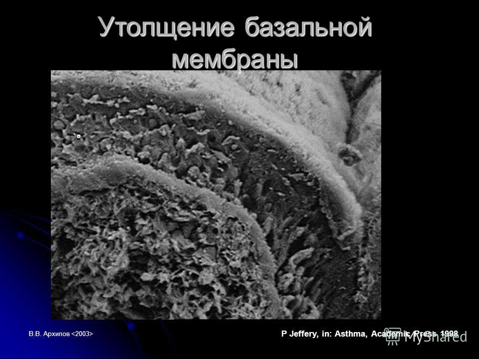 В.В. Архипов Утолщение базальной мембраны P Jeffery, in: Asthma, Academic Press 1998