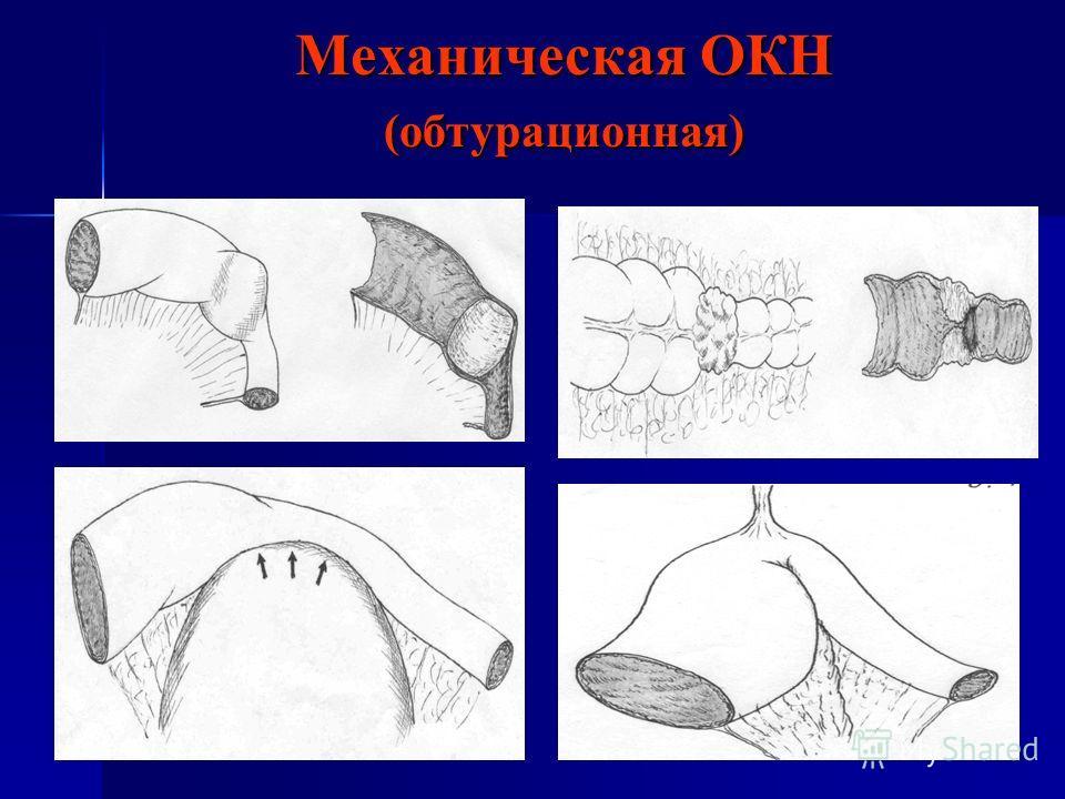Механическая ОКН (обтурационная)