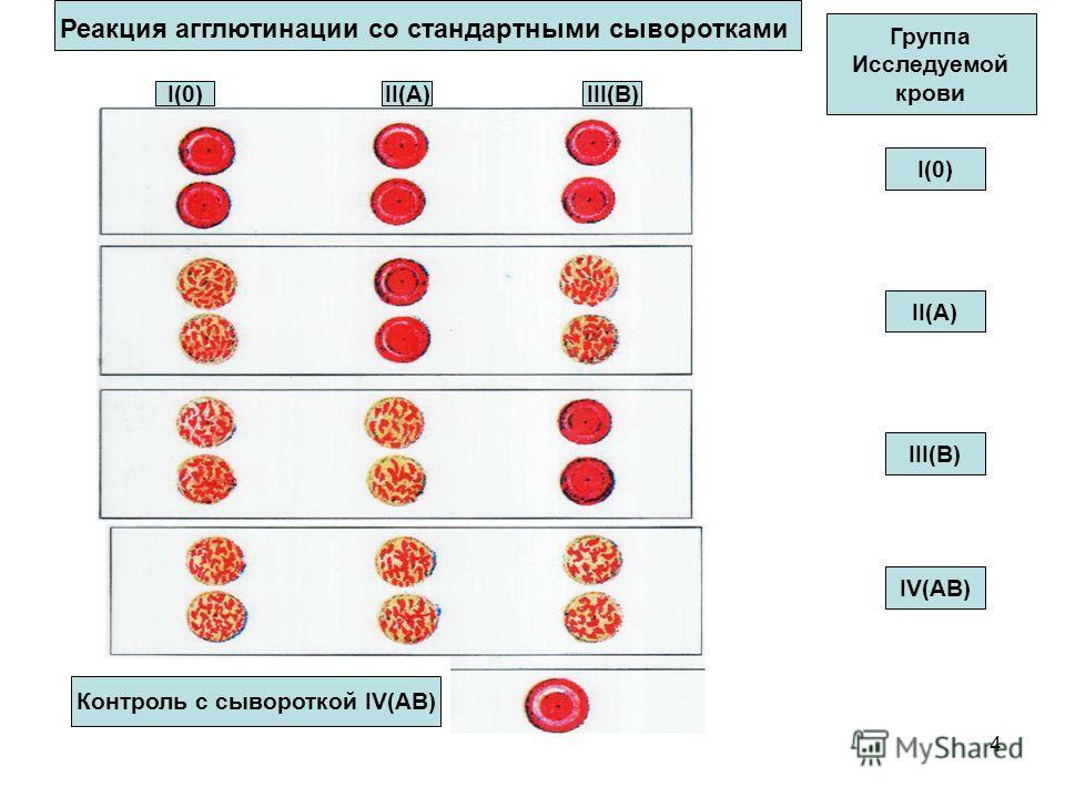 4 Реакция агглютинации со стандартными сыворотками I(0)II(A)III(B) Группа Исследуемой крови I(0) II(A) III(B) IV(AB) Контроль с сывороткой IV(AB)