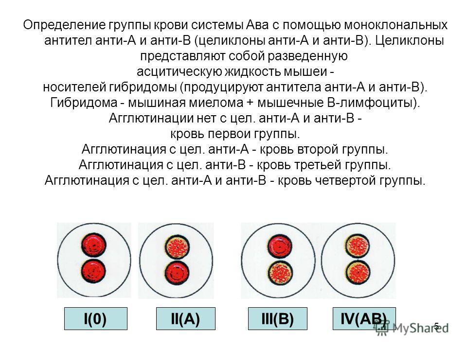 5 Определение группы крови системы Ава с помощью моноклональных антител анти-А и анти-В (целиклоны анти-А и анти-В). Целиклоны представляют собой разведенную асцитическую жидкость мышеи - носителей гибридомы (продуцируют антитела анти-А и анти-В). Ги