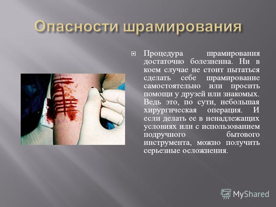 Процедура шрамирования достаточно болезненна. Ни в коем случае не стоит пытаться сделать себе шрамирование самостоятельно или просить помощи у друзей или знакомых. Ведь это, по сути, небольшая хирургическая операция. И если делать ее в ненадлежащих у