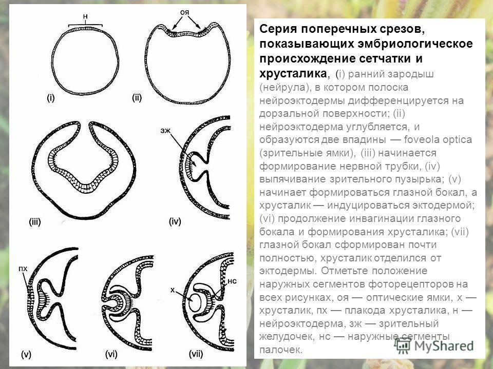 Серия поперечных срезов, показывающих эмбриологическое происхождение сетчатки и хрусталика, (i) ранний зародыш (нейрула), в котором полоска нейроэктодермы дифференцируется на дорзальной поверхности; (ii) нейроэктодерма углубляется, и образуются две в