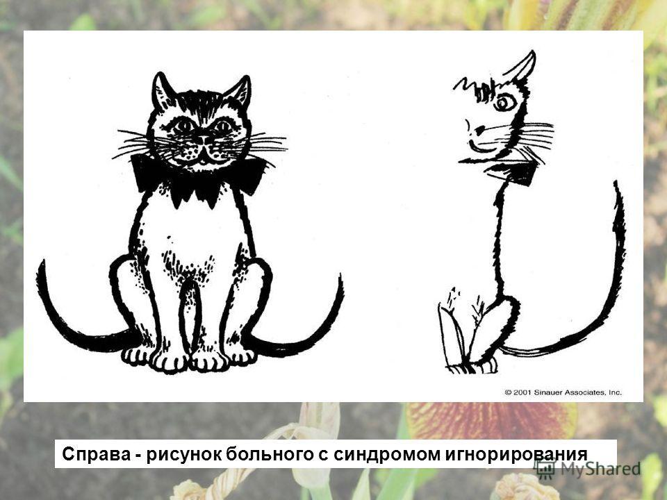 Справа - рисунок больного с синдромом игнорирования
