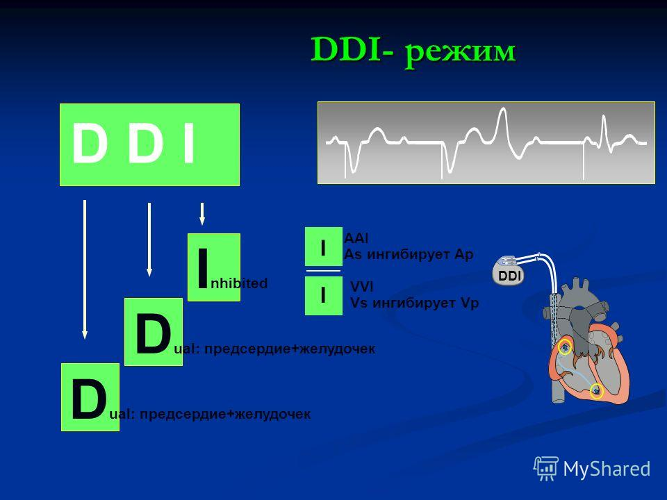 D D I D ual: предсердие+желудочек I AAI As ингибирует Ap I VVI Vs ингибирует Vp I nhibited DDI- режим