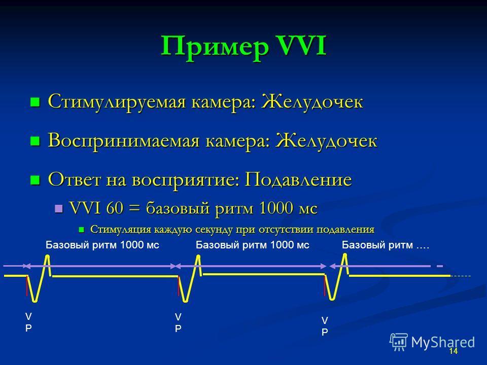Пример VVI Стимулируемая камера: Желудочек Стимулируемая камера: Желудочек Воспринимаемая камера: Желудочек Воспринимаемая камера: Желудочек Ответ на восприятие: Подавление Ответ на восприятие: Подавление VVI 60 = базовый ритм 1000 мс VVI 60 = базовы