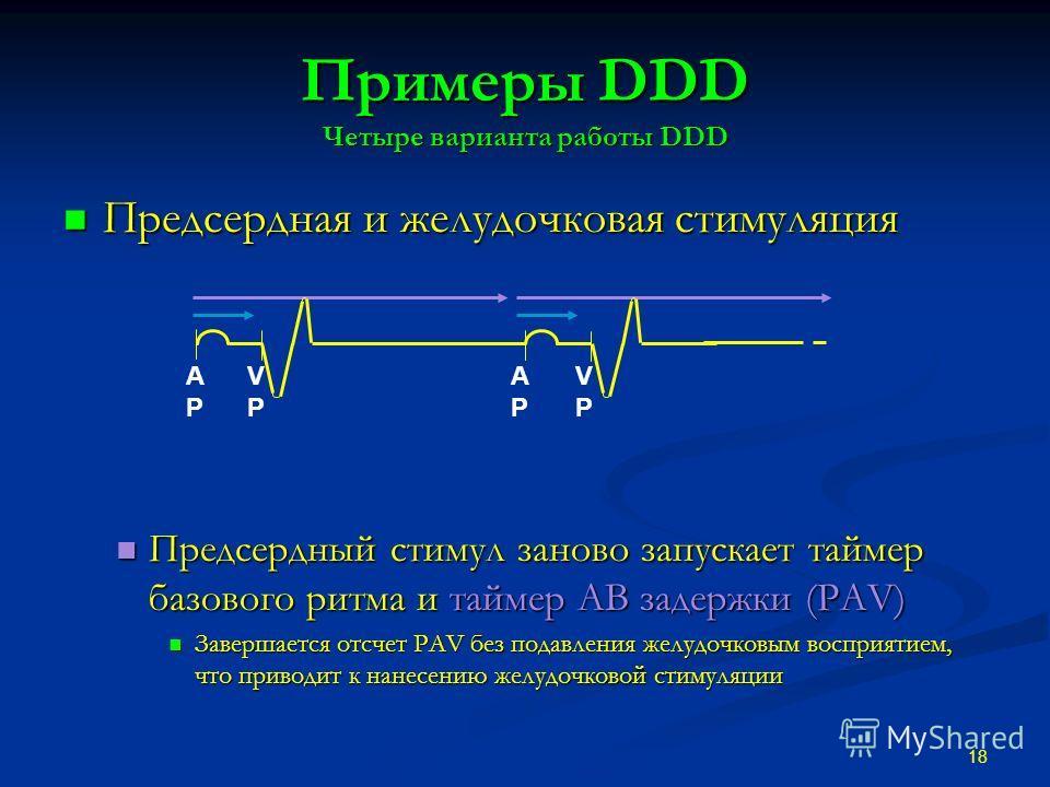 Примеры DDD Четыре варианта работы DDD Предсердная и желудочковая стимуляция Предсердная и желудочковая стимуляция Предсердный стимул заново запускает таймер базового ритма и таймер АВ задержки (PAV) Предсердный стимул заново запускает таймер базовог