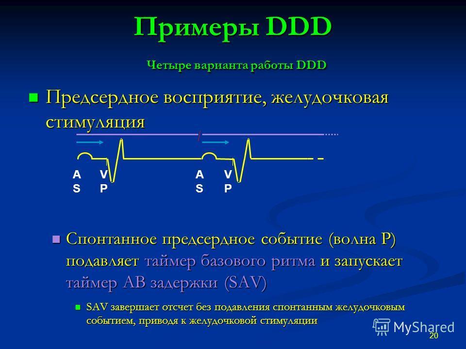 Примеры DDD Четыре варианта работы DDD Предсердное восприятие, желудочковая стимуляция Предсердное восприятие, желудочковая стимуляция Спонтанное предсердное событие (волна P) подавляет таймер базового ритма и запускает таймер АВ задержки (SAV) Спонт