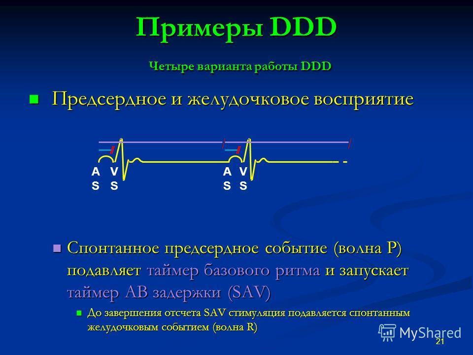 Примеры DDD Четыре варианта работы DDD Предсердное и желудочковое восприятие Предсердное и желудочковое восприятие Спонтанное предсердное событие (волна P) подавляет таймер базового ритма и запускает таймер АВ задержки (SAV) Спонтанное предсердное со