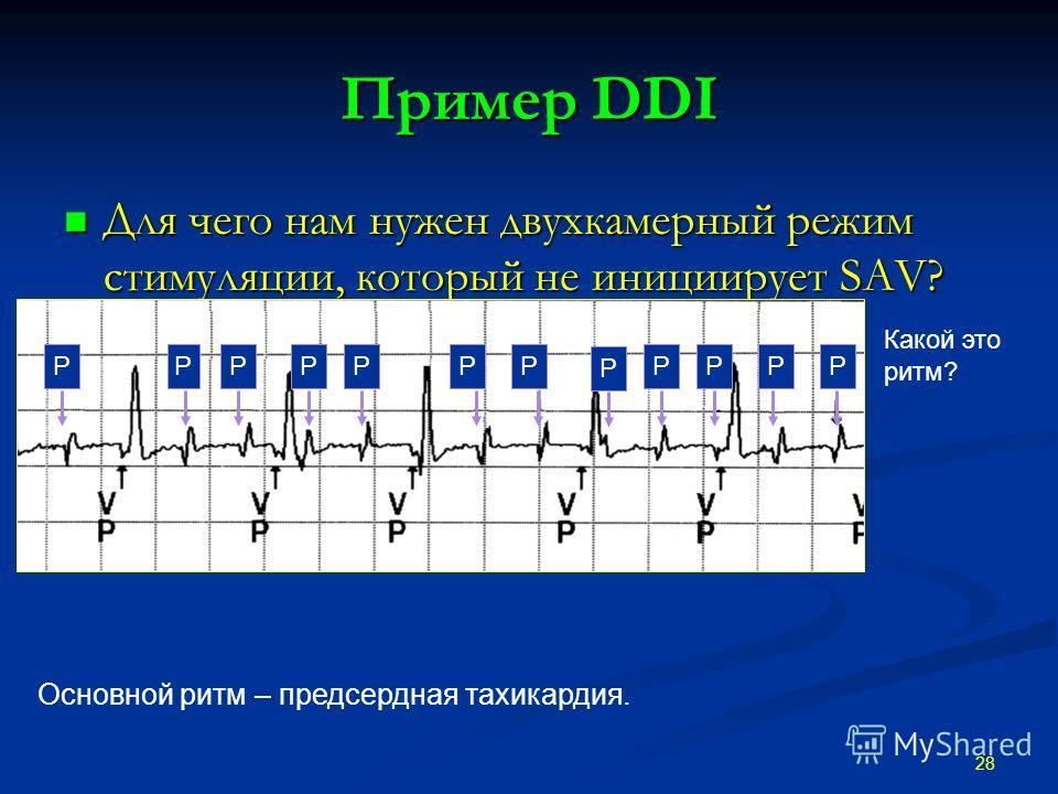 Пример DDI Для чего нам нужен двухкамерный режим стимуляции, который не инициирует SAV? Для чего нам нужен двухкамерный режим стимуляции, который не инициирует SAV? 28 Какой это ритм? Основной ритм – предсердная тахикардия. PPPPPPP P PPPP