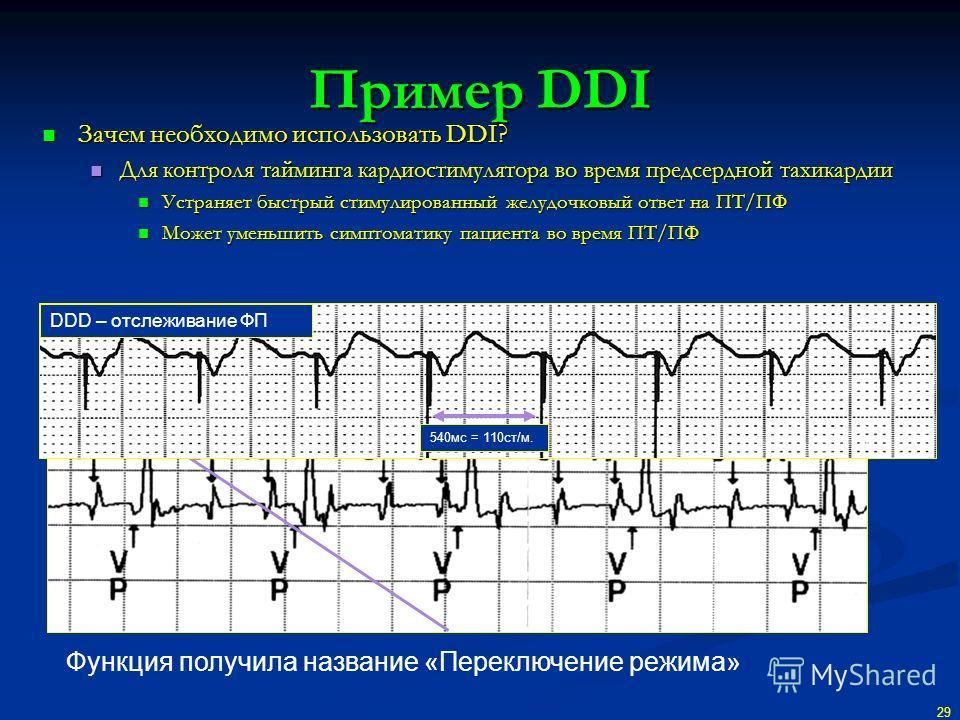 Пример DDI Зачем необходимо использовать DDI? Зачем необходимо использовать DDI? Для контроля тайминга кардиостимулятора во время предсердной тахикардии Для контроля тайминга кардиостимулятора во время предсердной тахикардии Устраняет быстрый стимули