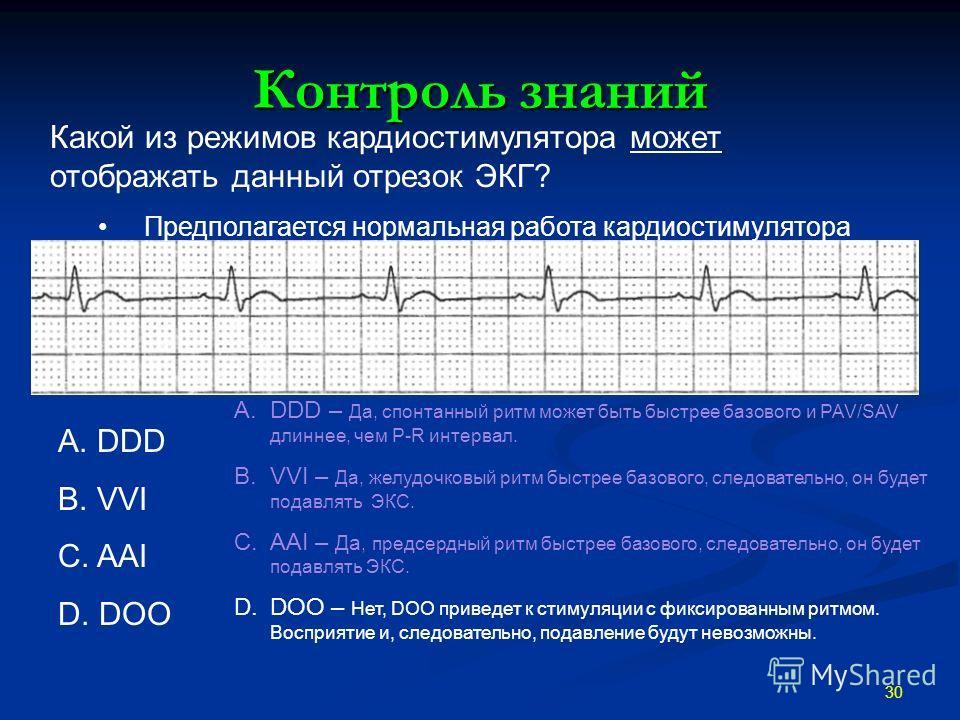 Контроль знаний 30 A.DDD – Да, спонтанный ритм может быть быстрее базового и PAV/SAV длиннее, чем P-R интервал. B.VVI – Да, желудочковый ритм быстрее базового, следовательно, он будет подавлять ЭКС. C.AAI – Да, предсердный ритм быстрее базового, след