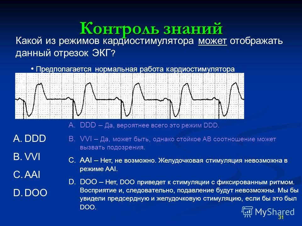 Контроль знаний 31 Какой из режимов кардиостимулятора может отображать данный отрезок ЭКГ ? Предполагается нормальная работа кардиостимулятора A.DDD B.VVI C.AAI D.DOO A.DDD – Да, вероятнее всего это режим DDD. B.VVI – Да, может быть, однако стойкое А