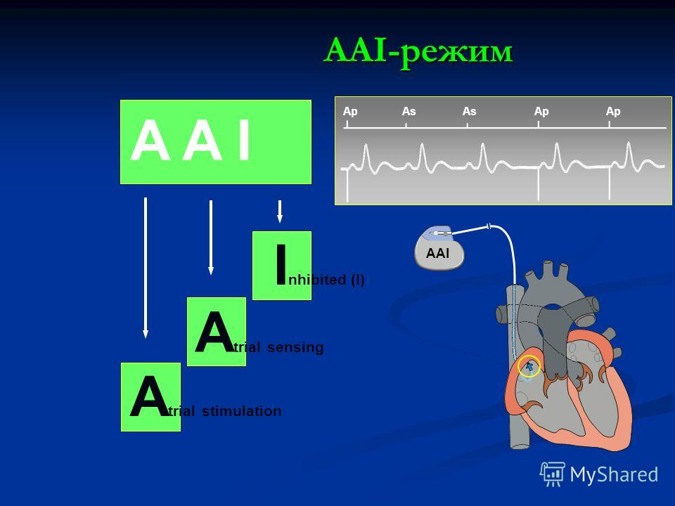 A trial stimulation A trial sensing I nhibited (I) Ap As Ap AAI-режим