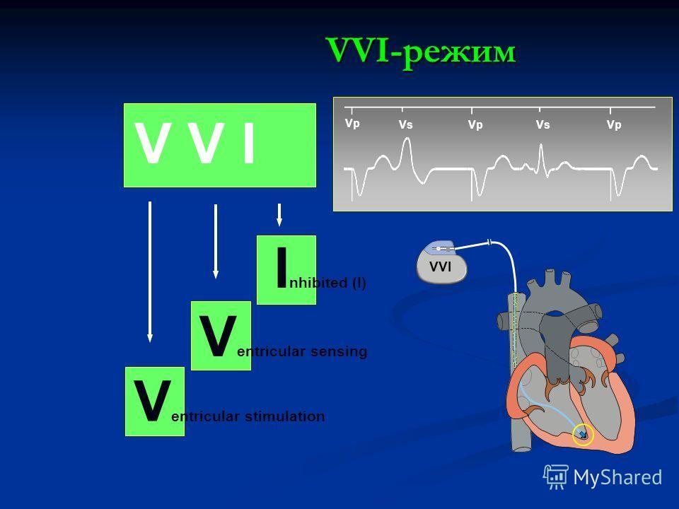 V V I V entricular stimulation V entricular sensing I nhibited (I) VsVp Vs Vp VVI-режим