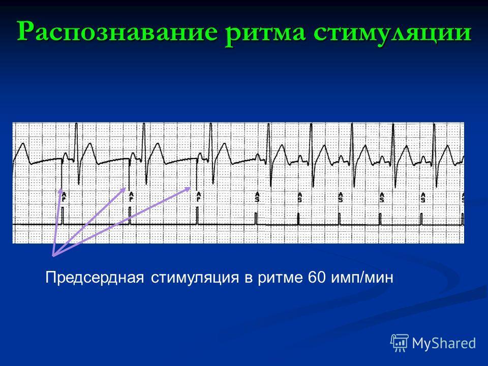 Распознавание ритма стимуляции Предсердная стимуляция в ритме 60 имп/мин