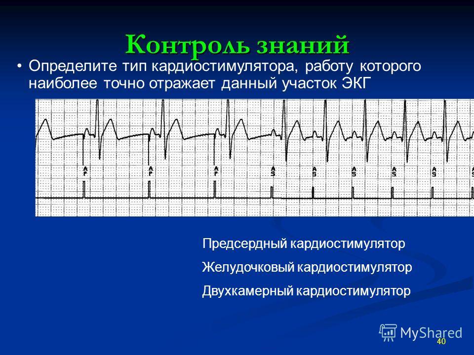 Контроль знаний 40 Определите тип кардиостимулятора, работу которого наиболее точно отражает данный участок ЭКГ Предсердный кардиостимулятор Желудочковый кардиостимулятор Двухкамерный кардиостимулятор