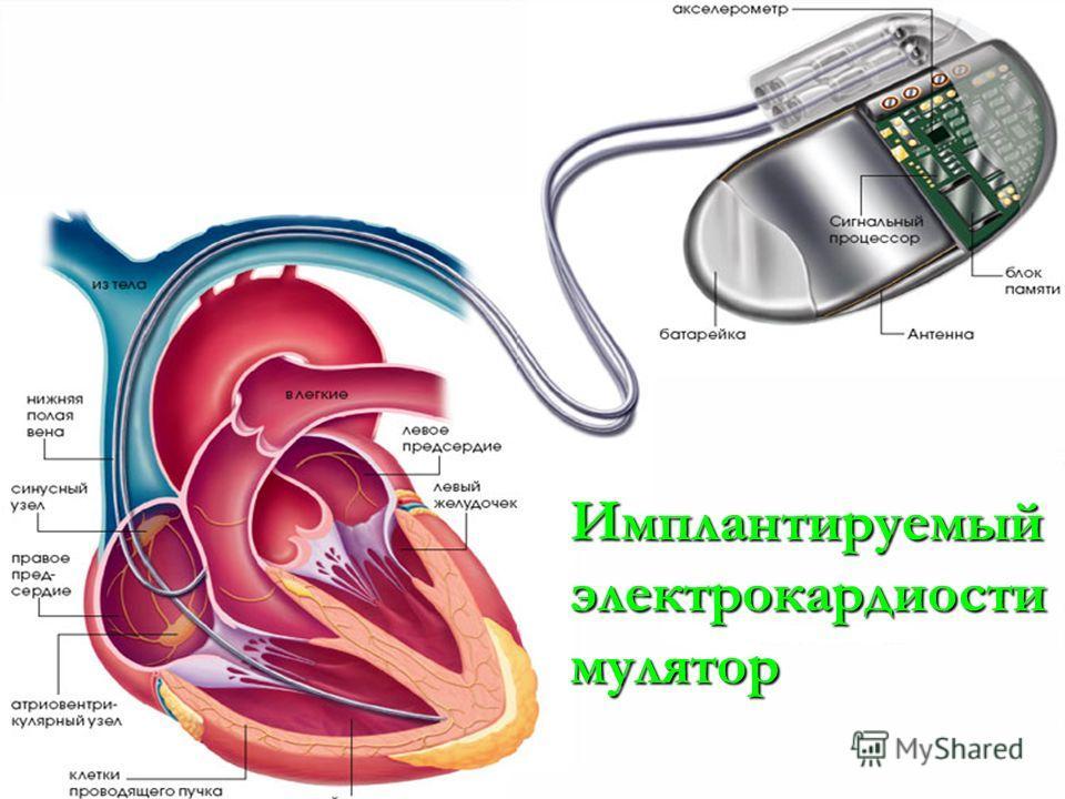 Имплантируемый электрокардиости мулятор