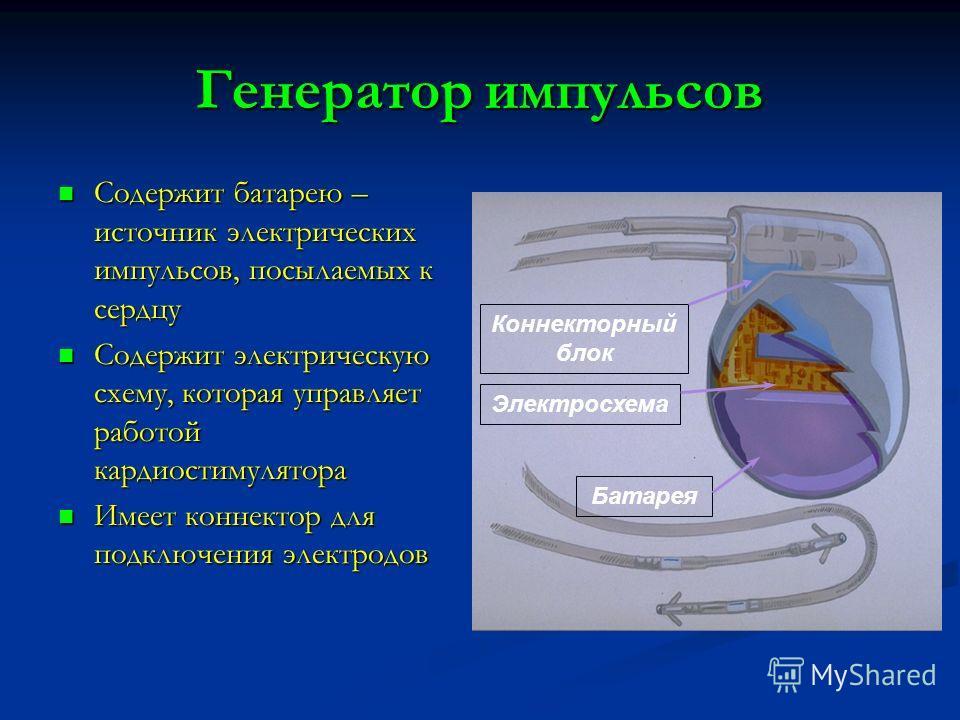 Генератор импульсов Содержит батарею – источник электрических импульсов, посылаемых к сердцу Содержит батарею – источник электрических импульсов, посылаемых к сердцу Содержит электрическую схему, которая управляет работой кардиостимулятора Содержит э