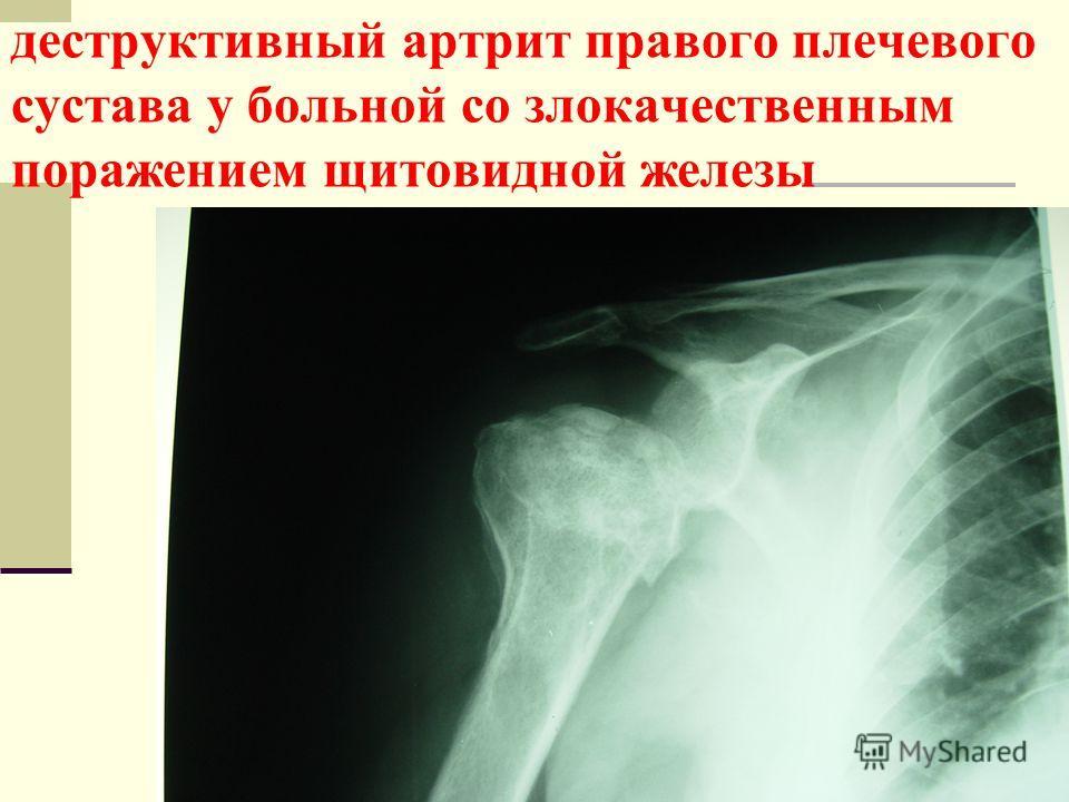 деструктивный артрит правого плечевого сустава у больной со злокачественным поражением щитовидной железы