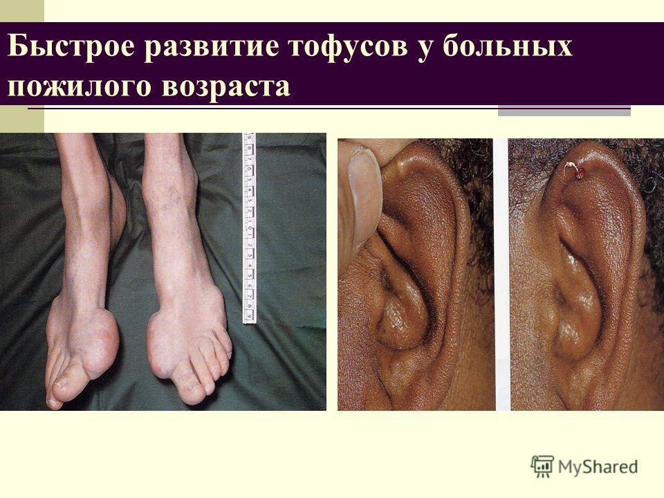 Быстрое развитие тофусов у больных пожилого возраста