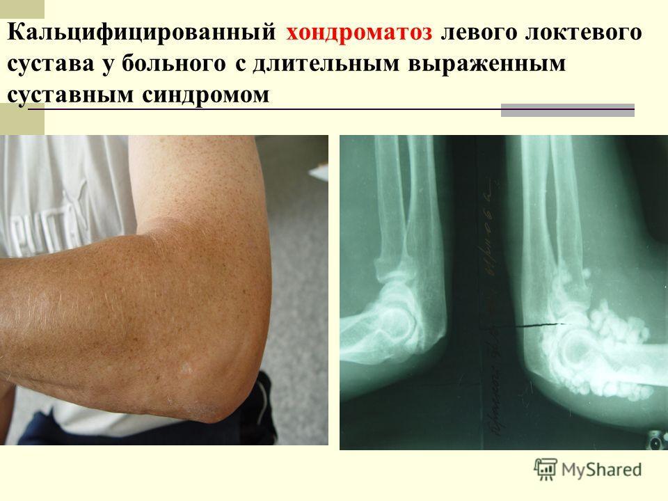 Кальцифицированный хондроматоз левого локтевого сустава у больного с длительным выраженным суставным синдромом
