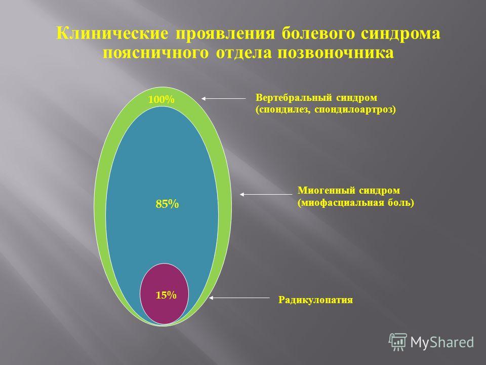 100% 85% 15% Вертебральный синдром (спондилез, спондилоартроз) Миогенный синдром (миофасциальная боль) Радикулопатия Клинические проявления болевого синдрома поясничного отдела позвоночника