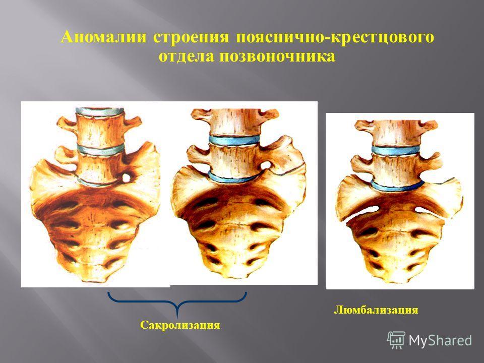 Сакролизация Люмбализация Аномалии строения пояснично-крестцового отдела позвоночника