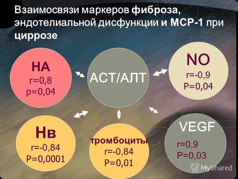 Взаимосвязи маркеров фиброза, эндотелиальной дисфункции и МСР-1 при циррозе НА r=0,8 р=0,04 Нв r=-0,84 Р=0,0001 NO r=-0,9 Р=0,04 АСТ/АЛТ VEGF r=0,9 Р=0,03 тромбоциты r=-0,84 Р=0,01