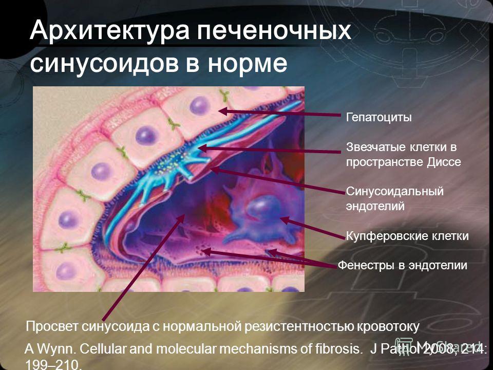 Архитектура печеночных синусоидов в норме Гепатоциты Звезчатые клетки в пространстве Диссе Синусоидальный эндотелий Купферовские клетки Просвет синусоида с нормальной резистентностью кровотоку Фенестры в эндотелии A Wynn. Cellular and molecular mecha