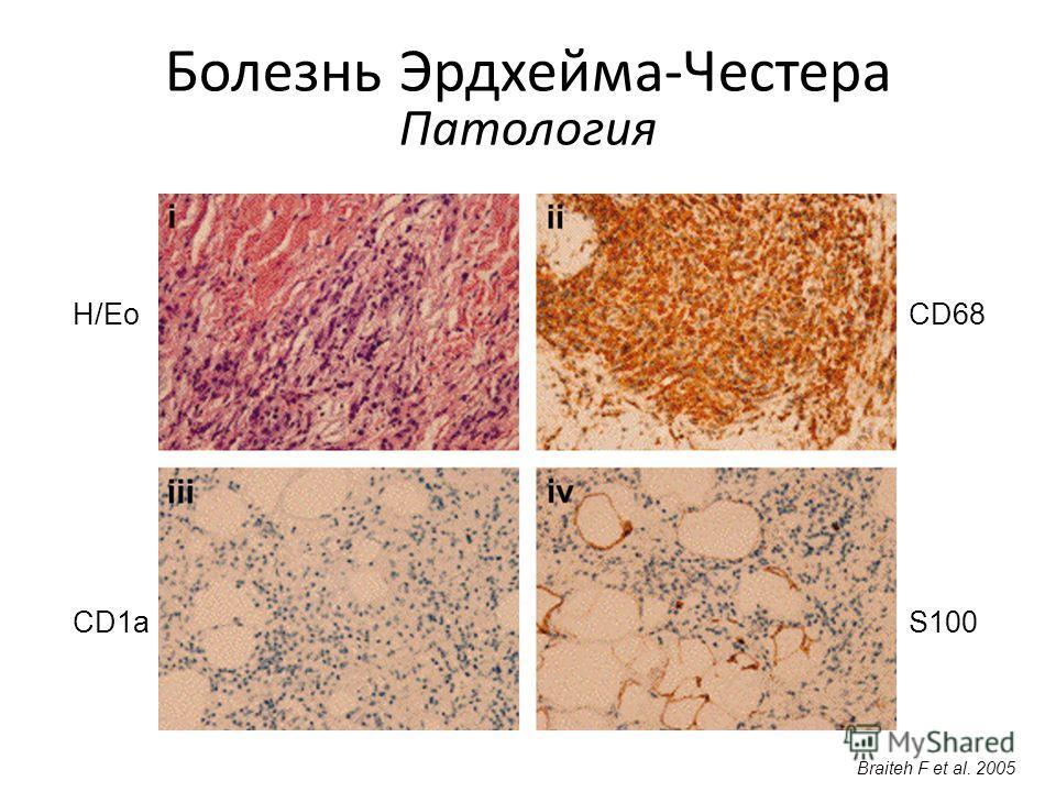 Болезнь Эрдхейма-Честера Патология Braiteh F et al. 2005 H/Eo CD1aS100 CD68