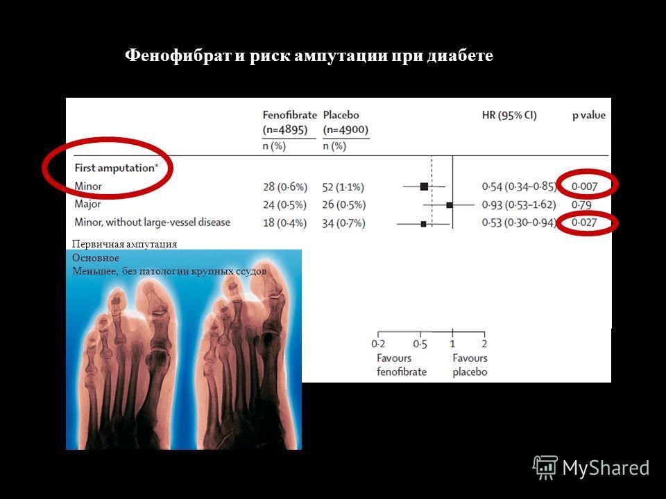 Фенофибрат и риск ампутации при диабете Первичная ампутация Основное Меньшее, без патологии крупных ссудов