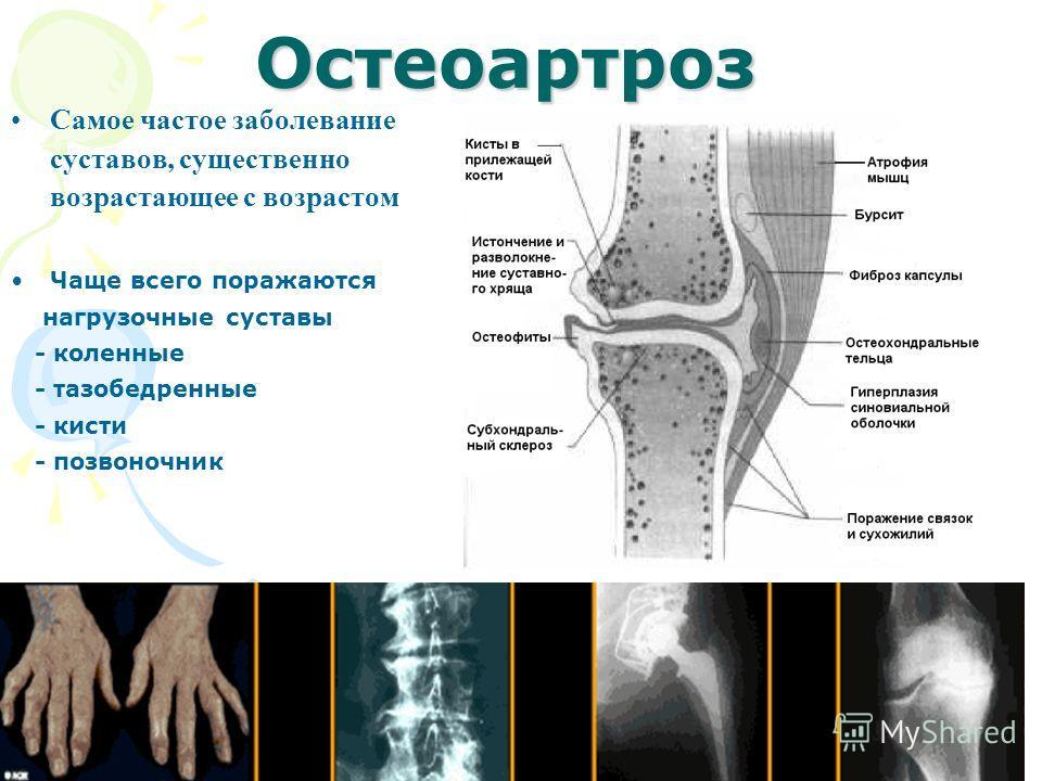 Остеоартроз Самое частое заболевание суставов, существенно возрастающее с возрастом Чаще всего поражаются нагрузочные суставы - коленные - тазобедренные - кисти - позвоночник