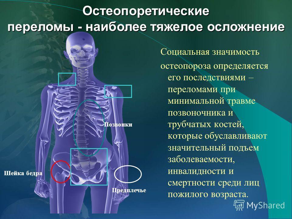 Социальная значимость остеопороза определяется его последствиями – переломами при минимальной травме позвоночника и трубчатых костей, которые обуславливают значительный подъем заболеваемости, инвалидности и смертности среди лиц пожилого возраста. Поз