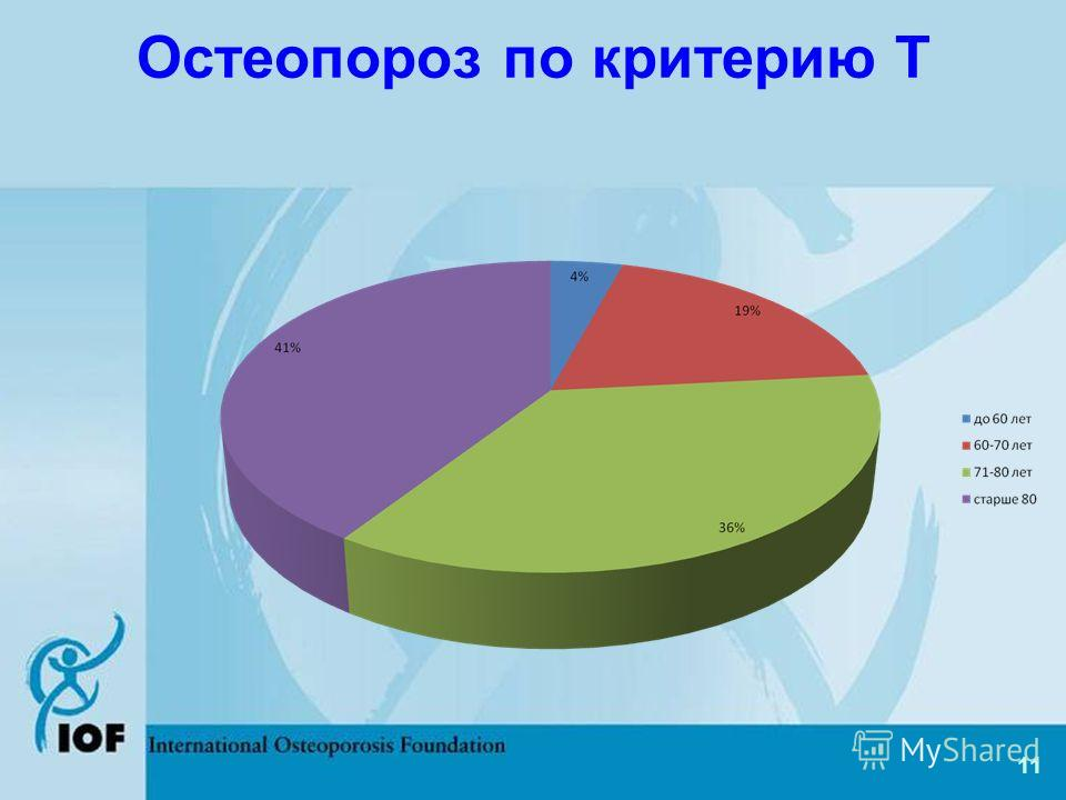 Остеопороз по критерию Т 11