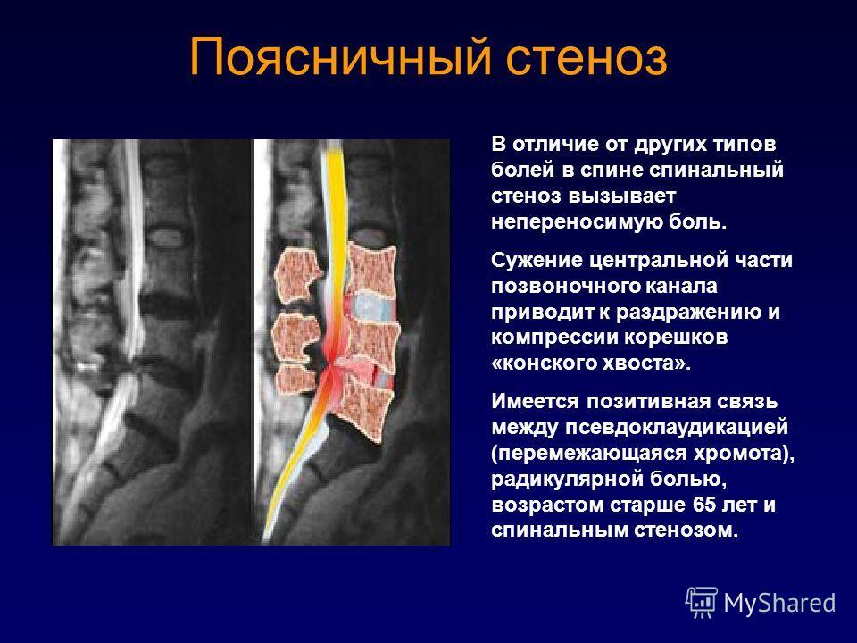 Поясничный стеноз В отличие от других типов болей в спине спинальный стеноз вызывает непереносимую боль. Сужение центральной части позвоночного канала приводит к раздражению и компрессии корешков «конского хвоста». Имеется позитивная связь между псев
