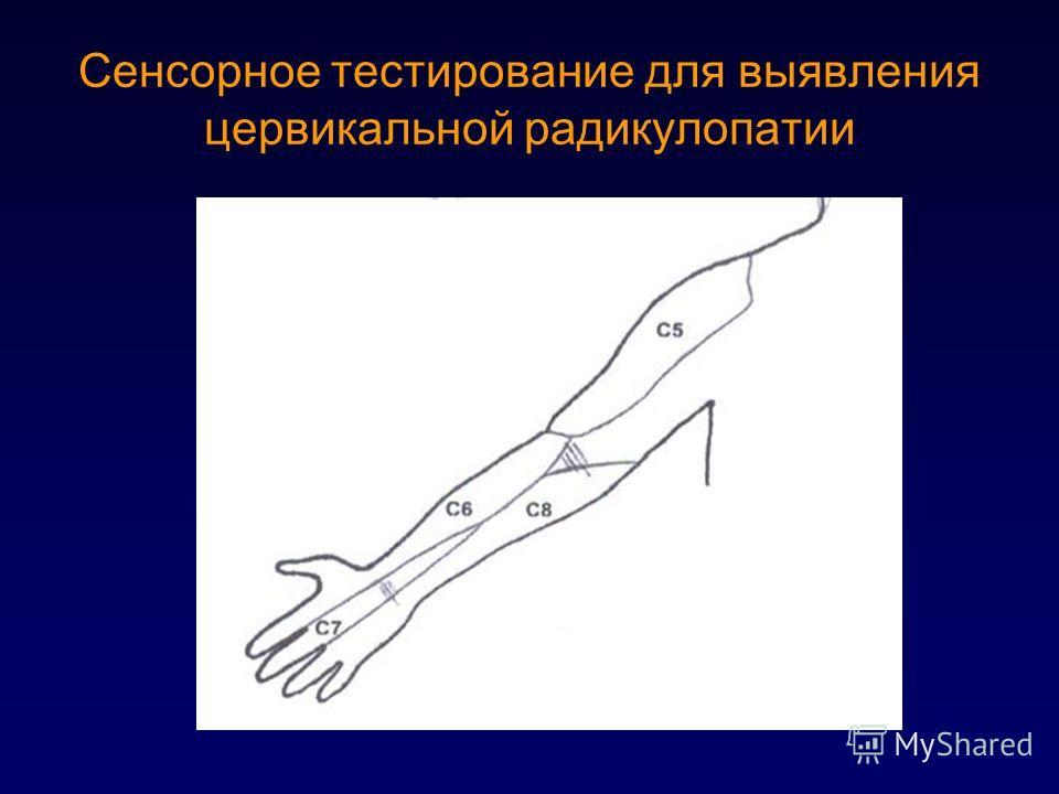 Сенсорное тестирование для выявления цервикальной радикулопатии