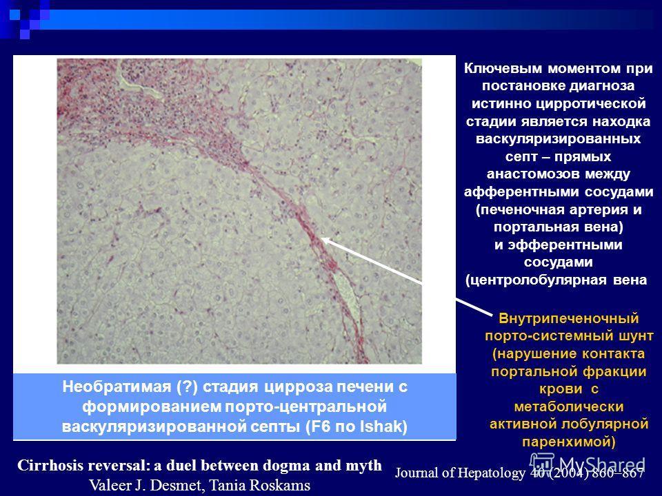Cirrhosis reversal: a duel between dogma and myth Valeer J. Desmet, Tania Roskams Journal of Hepatology 40 (2004) 860–867 Необратимая (?) стадия цирроза печени с формированием порто-центральной васкуляризированной септы (F6 по Ishak) Внутрипеченочный