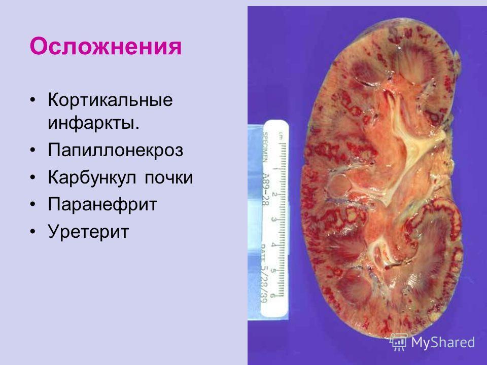 Осложнения Кортикальные инфаркты. Папиллонекроз Карбункул почки Паранефрит Уретерит