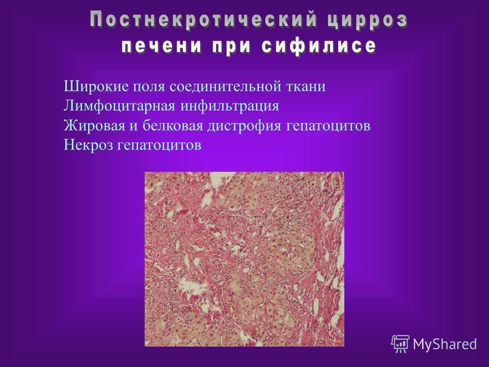 Широкие поля соединительной ткани Лимфоцитарная инфильтрация Жировая и белковая дистрофия гепатоцитов Некроз гепатоцитов