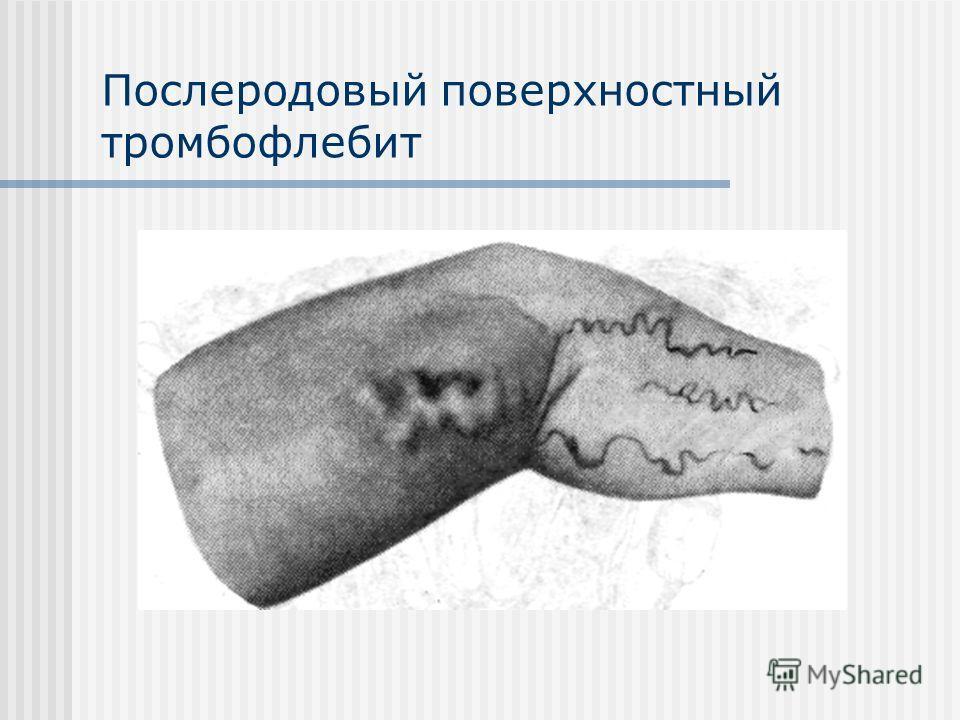 Послеродовый поверхностный тромбофлебит