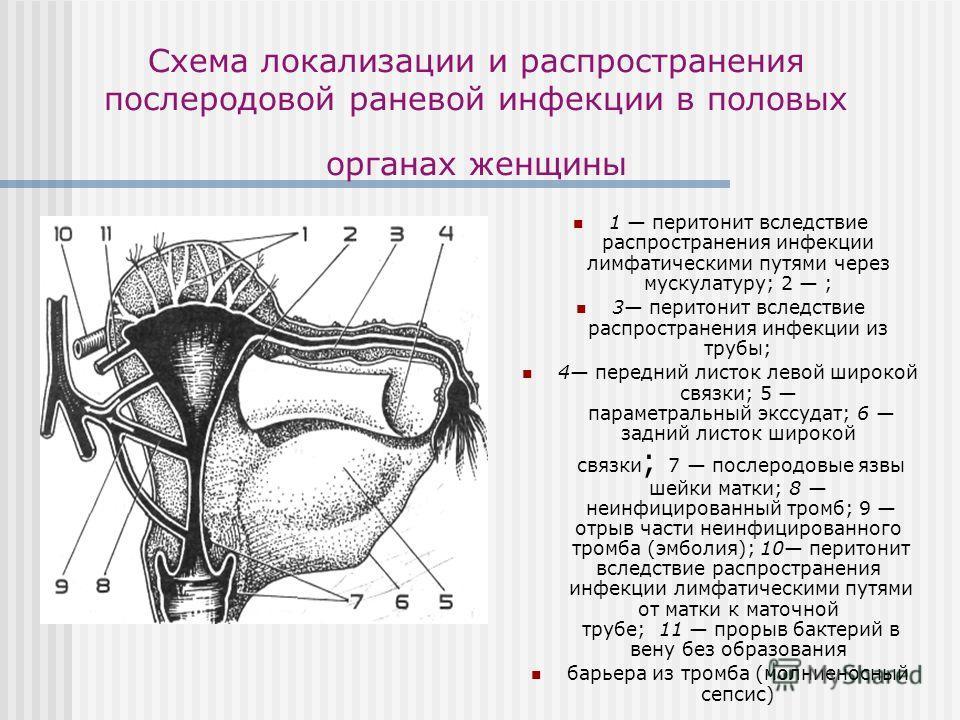 Схема локализации и распространения послеродовой раневой инфекции в половых органах женщины 1 перитонит вследствие распространения инфекции лимфатическими путями через мускулатуру; 2 ; 3 перитонит вследствие распространения инфекции из трубы; 4 перед