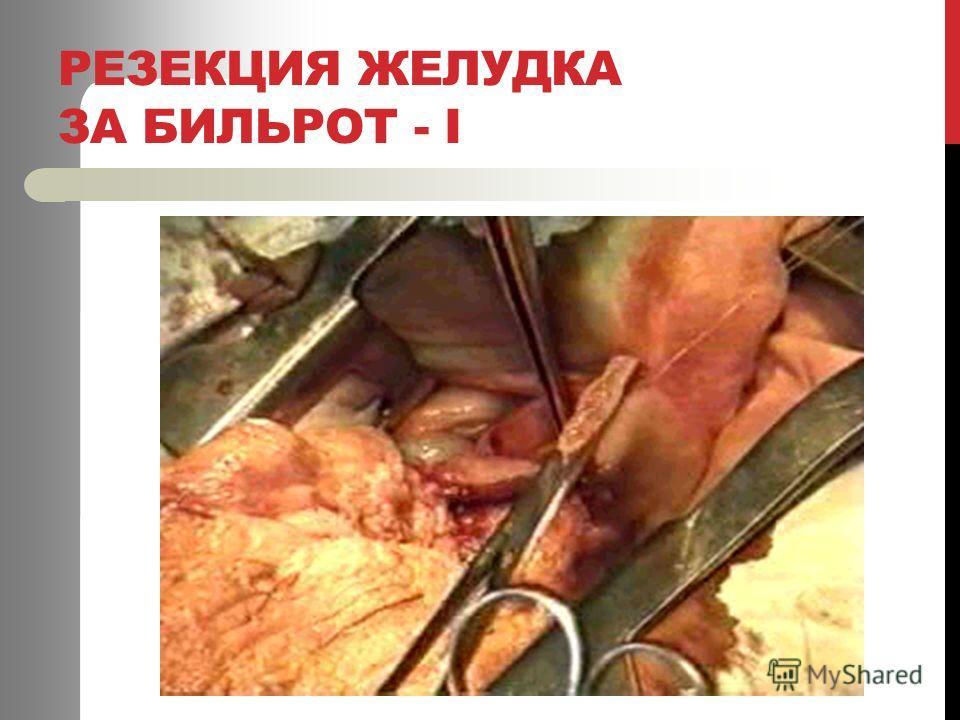 РЕЗЕКЦИЯ ЖЕЛУДКА ЗА БИЛЬРОТ - І